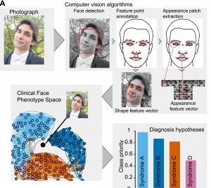 Computer programme detects genetic illness by mapping faces
